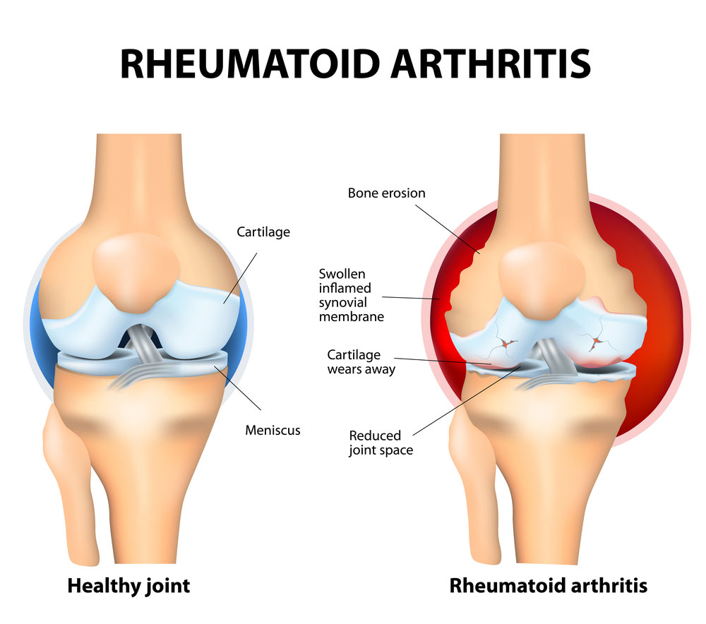 Rheumatoid Arthritis Causes, Symptoms, and Treatment